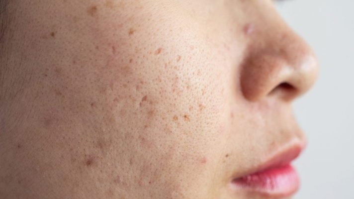 acne hyperpigmentation