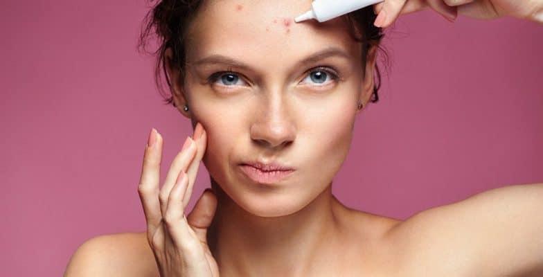 acne overnight treatment