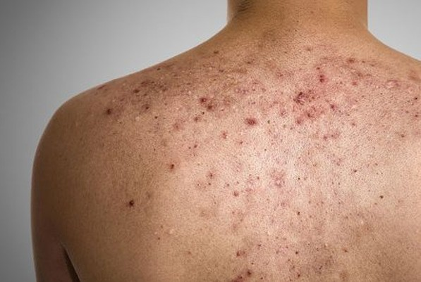 back acne scar treatment